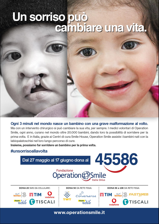 operazione smile